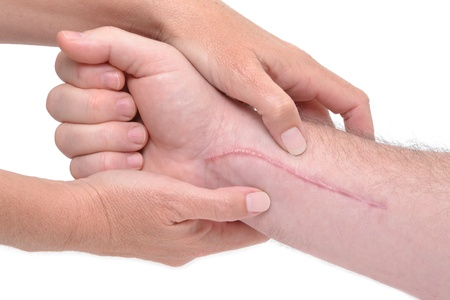 hands massaging a arm with scar Stock Photo