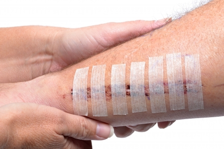 cut: injured patient getting care