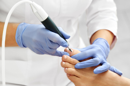 Professional hardware pedicure using electric machine.Patient on medical pedicure procedure, visiting podiatrist.Peeling feet with special electric device.Foot treatment in SPA salon.Podiatry clinic. Stock Photo