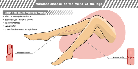 Vector illustration of a varicose illness of veins of the legs. Illustration