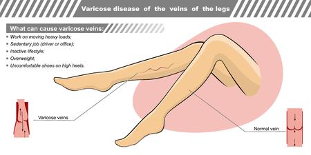 Ilustración del vector de una enfermedad varicosa de las venas de las piernas.