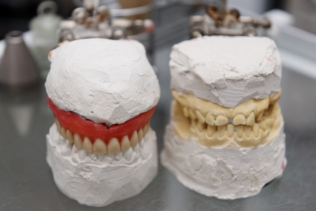 alignments: Two plaster models with artificial tooth alignments on a glass little table  Stock Photo