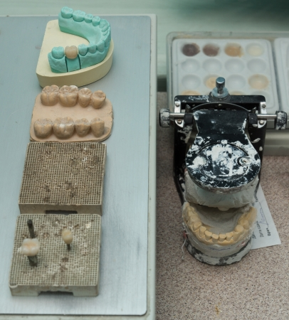 alignments: Workplace of the dental technician with models of tooth alignments and the made tooth crowns  Stock Photo
