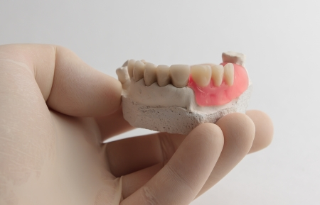 The hand holds in a protective glove and shows artificial dentalny designs  photo