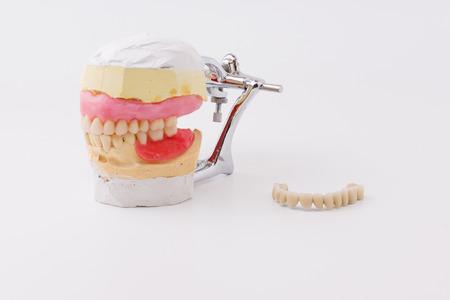 dental laboratory: las dentaduras artificiales hechas en el laboratorio dental