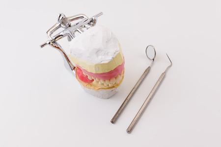 laboratorio dental: las dentaduras artificiales hechas en el laboratorio dental