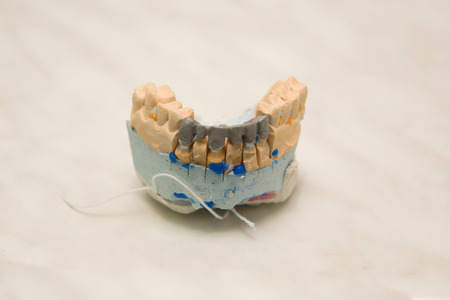 alignments: plaster models of tooth alignments with a steel framework for production of ceramic crowns