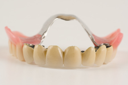 attachments: Clasp prosthesis with and attachments fixing ceramic crowns Stock Photo