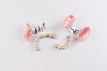 prothetic: Clasp prosthesis with and attachments fixing ceramic crowns Stock Photo