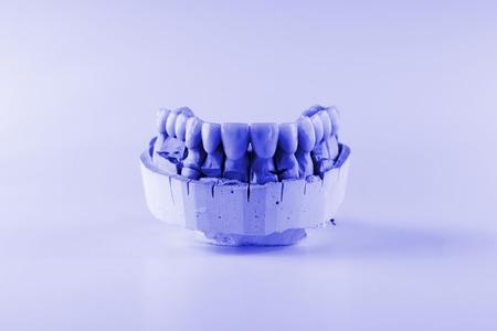 articulator: denture made of ceramics located on plaster model