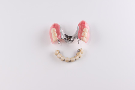 Clasp prosthesis with and attachments fixing ceramic crowns Stock Photo