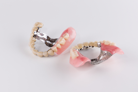 attachment: Clasp prosthesis with and attachments fixing ceramic crowns Stock Photo