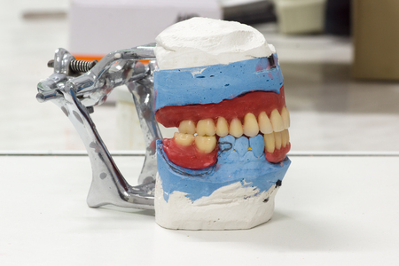 Artificial dentures in the manufacturing steps in the dental lab Stock Photo