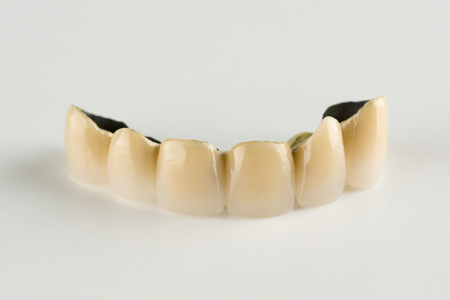 Metal-ceramic tooth crowns with locks for fixing removable prostheses Stock Photo