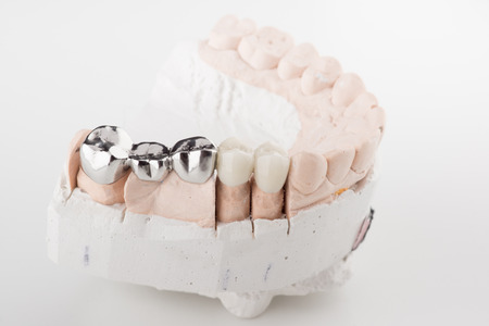 prosthodontics: Bridged dental prostheses are made of steel and ceramic paste Stock Photo