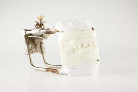 Occludator with grafted in it models of dentition