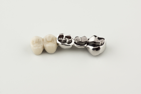 Bridged dental prostheses are made of steel and ceramic paste Stock Photo