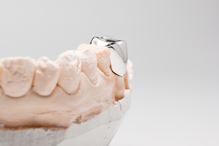 surrogate: Steel artificial dental crown for dentition restoration Stock Photo