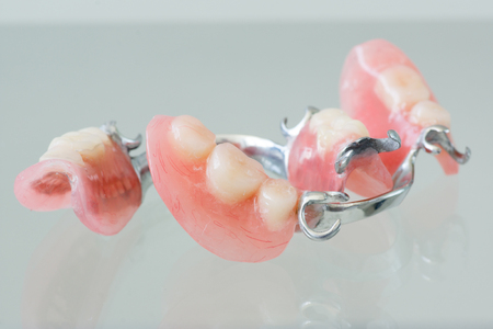 Clasp denture with a metal arc and artificial teeth Stock Photo