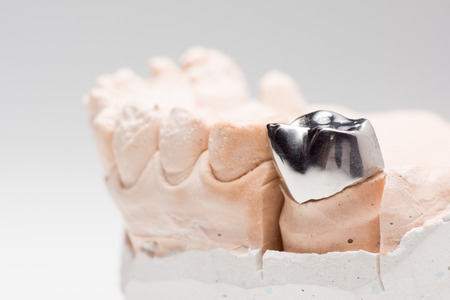 Steel artificial dental crown for dentition restoration Stock Photo