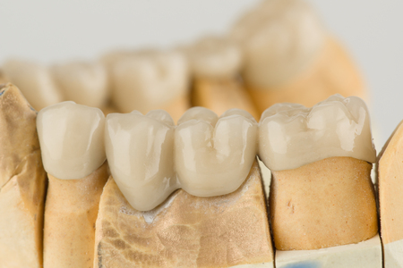 artificial dental structures made of ceramics for restoration of dentition