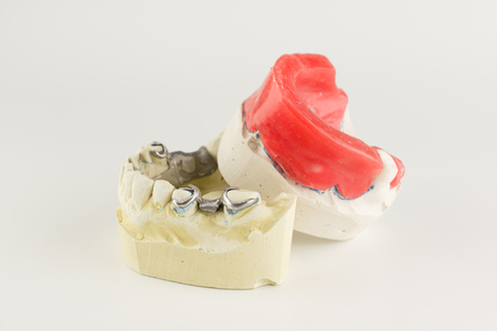 wax rollers on the tooth model for determining jaw closure