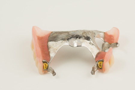 bugel remove dentures with attachments on white background