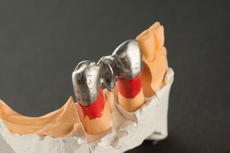 Steel artificial dental bridge for dentition restoration Stock Photo