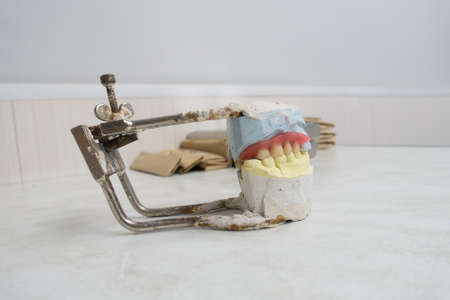 wax preparations of removable dentures on a plaster model Stock Photo
