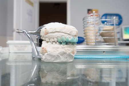 modeling of artificial teeth on a plaster model for visual display