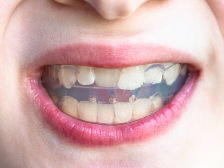 front view of orthodontic trainer for correction of teeth bite in mouth of teenager Imagens - 124951485