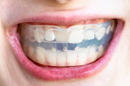 orthodontic trainer for correction of teeth bite in mouth of teenager Imagens - 124951486