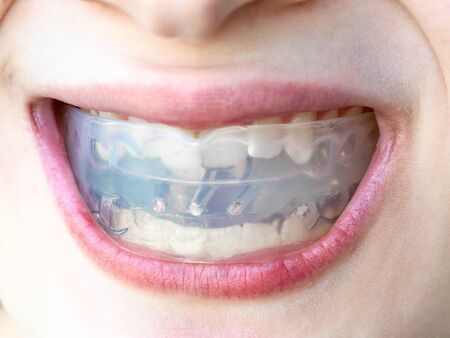 plastic orthodontic trainer for correction of teeth bite in mouth of teenager Imagens - 124951489