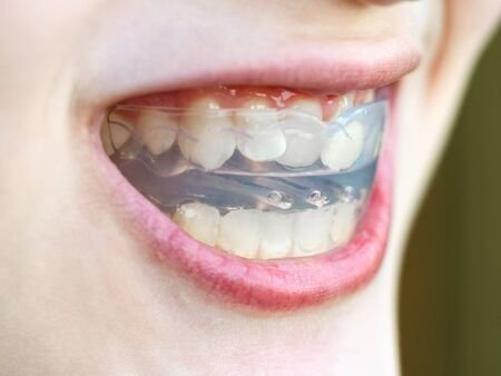 pre-orthodontic trainer for bite correction close up in open mouth of teenager Banco de Imagens