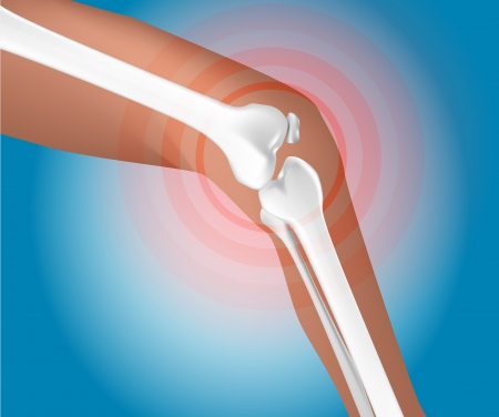 painfull knee joint catched, illustration