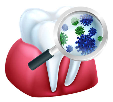 Magnifying Glass Tooth Bacteria Concept Stock Photo