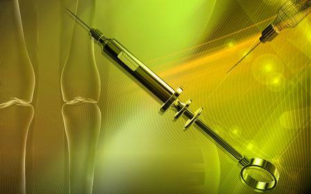 Veterinary surgical syringe   photo