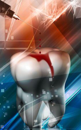 Digital Illustration of a  syringe dropping blood drops for teeth Stock Illustration - 5203064