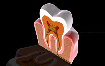 Digital illustration of teeth cross section  in colour background Stock Illustration - 6766789