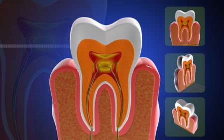 dentistry: Digital illustration of teeth cross section  in colour background