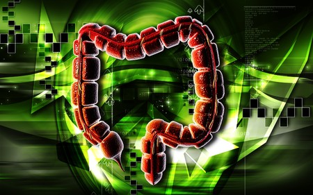 Digital illustration of large intestine in colour background Stock Illustration - 7203290