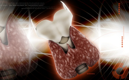 Digital illustration of  thyroid in colour  background Stock Illustration - 10411318