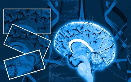 blue brain: Digital illustration of  brain in colour  background   Stock Photo