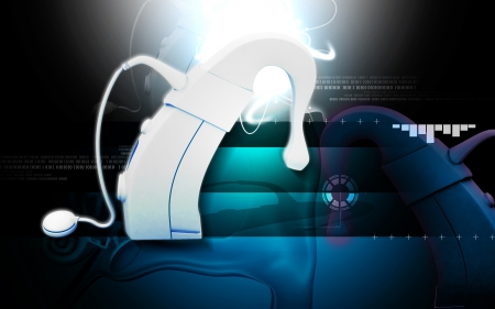 cochlear: Digital illustration of  Cochlear implant in  colour  background