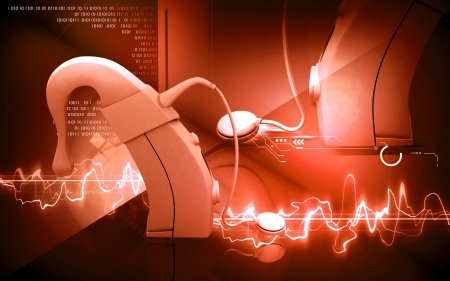 otologist: Digital illustration of  Cochlear implant in  colour  background