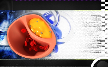 stenosis: Digital illustration of  Cogged arteries in colour  background