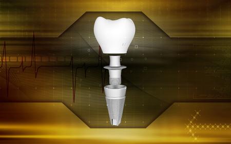 Digital illustration Dental implant in colour background   illustration