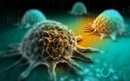 globulos blancos: Ilustración digital de la célula de cáncer en el fondo de color