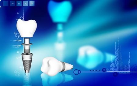 Digital illustration Dental implant in colour background Banco de Imagens