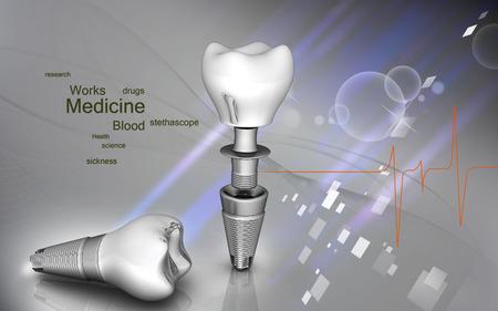 色の背景での歯科インプラントのデジタル イラストレーション